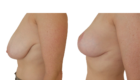 pexie mammaire lausanne