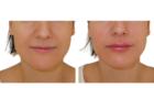 acide hyaluronique lèvre